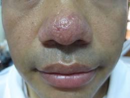 Cách khắc phục bệnh mũi đỏ nhanh chóng