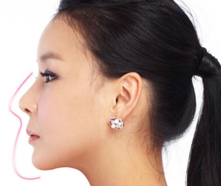 Nâng mũi đẹp bằng công nghệ 3D  3