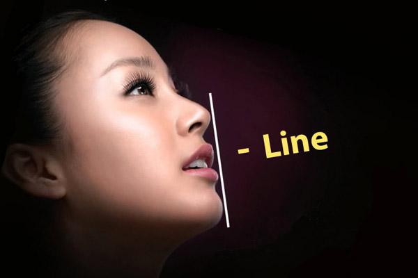 Bảng giá phẫu thuật nâng mũi S line tại Việt Nam 2