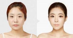 Liệu bao nhiêu tuổi được phẫu thuật khuôn mặt V line? Bác sĩ giải đáp