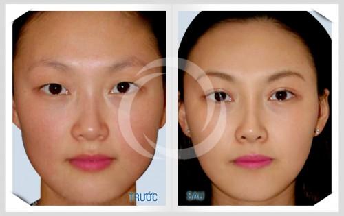 Cách trang điểm mũi tẹt theo xu hướng mới nhất