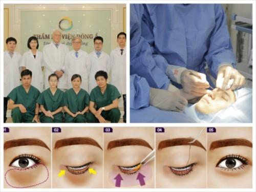 Theo chuyên gia thực hiện cắt mỡ mắt ở đâu đẹp?
