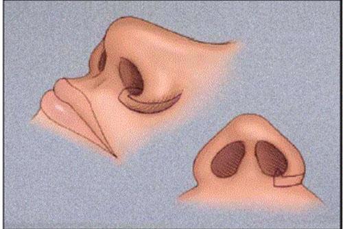 Đầy đủ nhất về phẫu thuật thu gọn cánh mũi đẹp 3