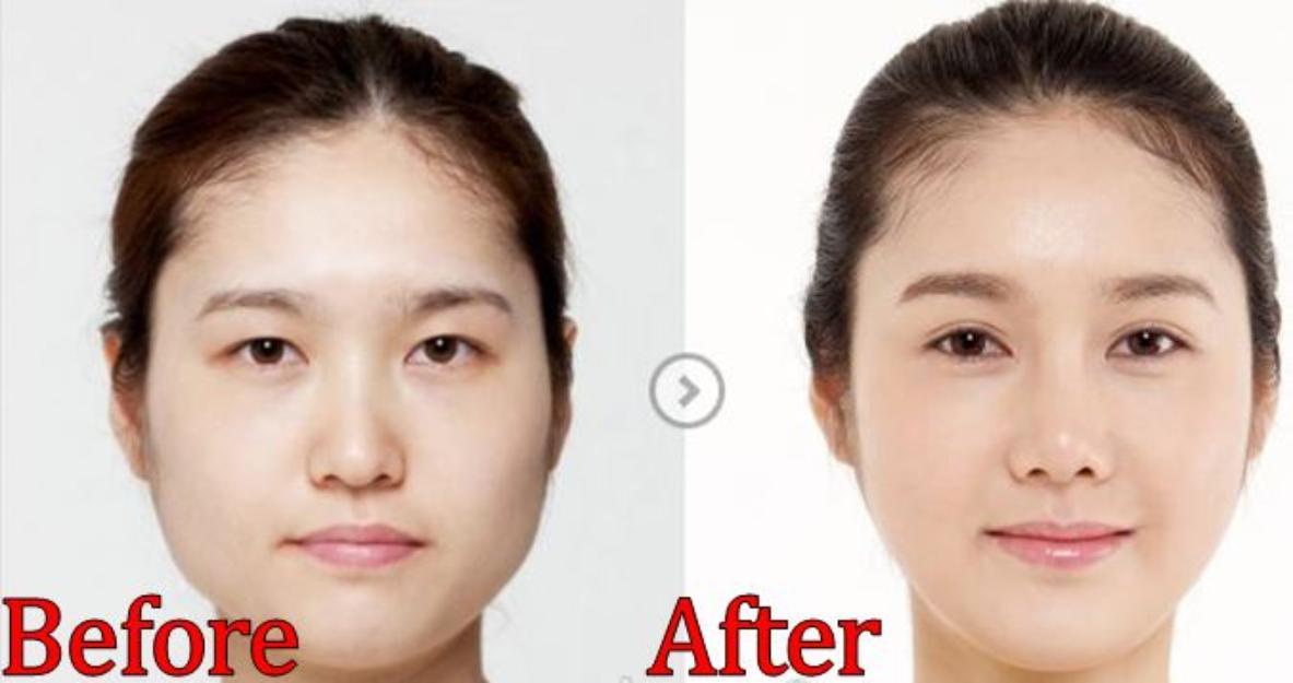Gọt mặt giúp tạo khuôn mặt thon gọn, thanh tú