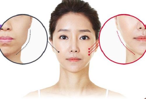 Phương pháp gọt mặt Hàn Quốc sử dụng công nghệ nội soi