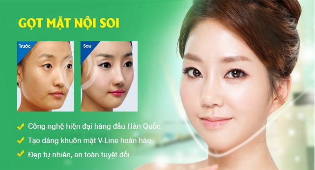 gọt mặt nội soi công nghệ Hàn Quốc an toàn, hiệu quả