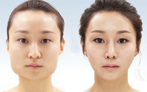Hình ảnh trước và sau khi tiến hành gọt xương hàm tại Đông Á