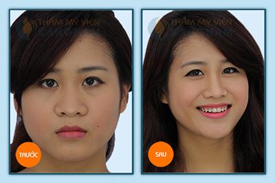 Hình ảnh nâng mũi hiệu quả hiện đại nhất 3