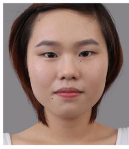 Mắt xếch xấu hay đẹp? – Cách khắc phục mắt xếch