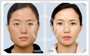 Kết quả gọt mặt trái xoan bằng công nghệ Hàn Quốc an toàn