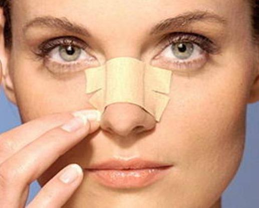 Nâng mũi cần đảm bảo chế độ chăm sóc sau phẫu thuật