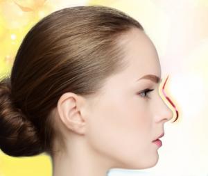 Nghe chuyên gia tư vấn nâng mũi bị thấp quá thì phải làm sao?