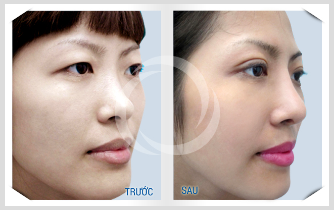 kết quả trước và sau khi nâng mũi bọc sụn