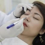 Phương pháp nâng mũi đẹp tự nhiên