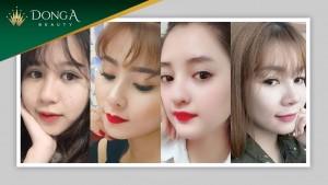 10+ ca thẩm mỹ nâng mũi đẹp ngoạn mục tại Đông Á