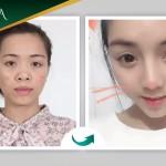 Loại bỏ khuyết điểm mũi hếch, đầu mũi ngắn nhờ nâng mũi Dr Park