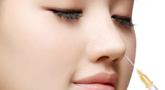Nâng mũi không phẫu thuật bằng chất làm đầy Radies nhẹ nhàng an toàn