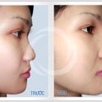 Nên thực hiện nâng mũi ở đâu đẹp Hà Nội cho mũi đẹp nhất?