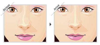 Nâng mũi ở đâu đẹp và an toàn – bệnh viện hay thẩm mỹ viện? 1