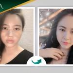 Hình ảnh khách hàng Nâng mũi S Line Dr Park + Cấy mỡ mặt tại Đông Á