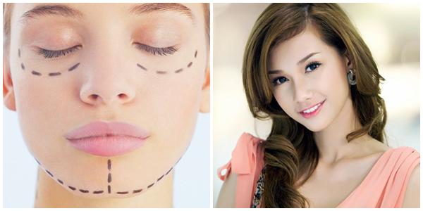 Phẫu thuật chỉnh hình cằm bằng công nghệ Hàn Quốc hiệu quả tuyệt vời