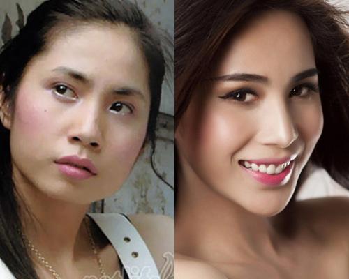 Nhiều sao Việt sử dụng phương pháp gọt cằm giúp tạo khuôn mặt