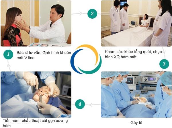 Quy trình gọt mặt nội soi tại TMV Đông Á
