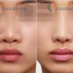 Phẫu thuật thu nhỏ đầu mũi – thủ thuật đơn giản