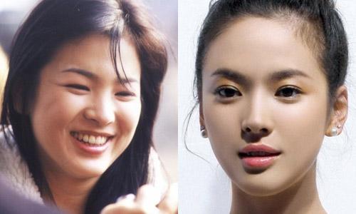 Sao Hàn thon gọn mặt nhờ giảm cân hay phẫu thuật