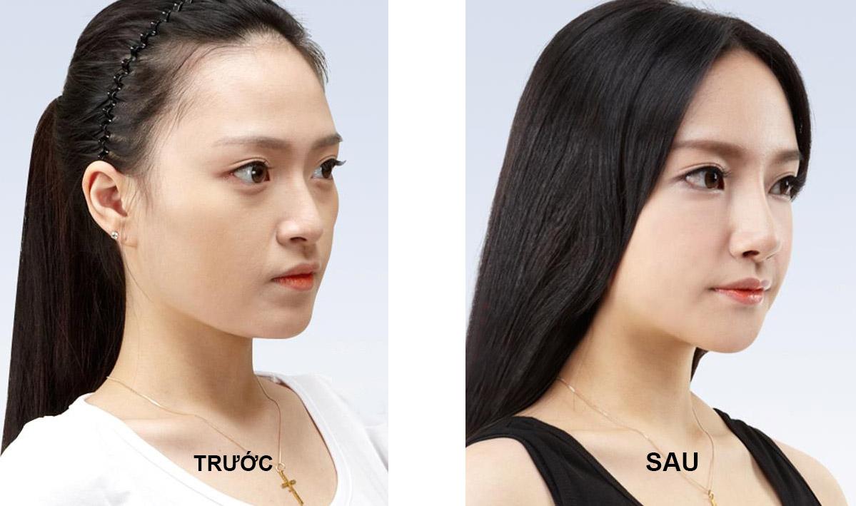 Kết quả nâng mũi bằng sụn tự thân tại TMV Đông Á