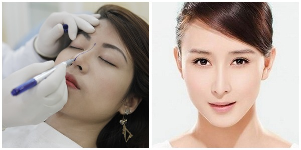Nâng mũi bằng bọc sụn tự thân khắc phục nhược điểm của phương pháp nâng mũi cũ
