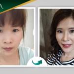 Vân Anh tái khám sau 15 ngày Cắt mí + Nâng mũi tại Đông Á