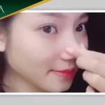 Thách thức vặn vẹo mũi sau nâng mũi tại Đông Á