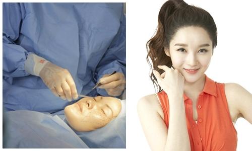 Phẫu thuật thẩm mỹ khuôn mặt V-line bằng công nghệ nội soi