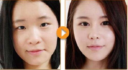 Thẩm mỹ nâng mũi Hàn Quốc an toàn cho người dùng