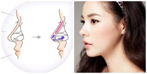 Xu hướng thẩm mỹ nâng mũi Hàn Quốc cho mũi đẹp đúng chuẩn