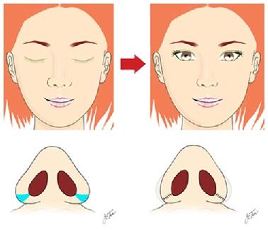 Trọn bộ nhất về phẫu thuật nâng mũi 5