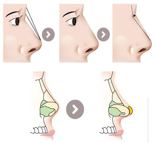 Trọn bộ nhất về phẫu thuật nâng mũi 8