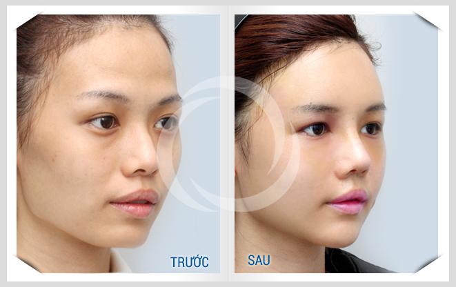 Kết quả trước sau chỉnh hình cằm tại Đông Á