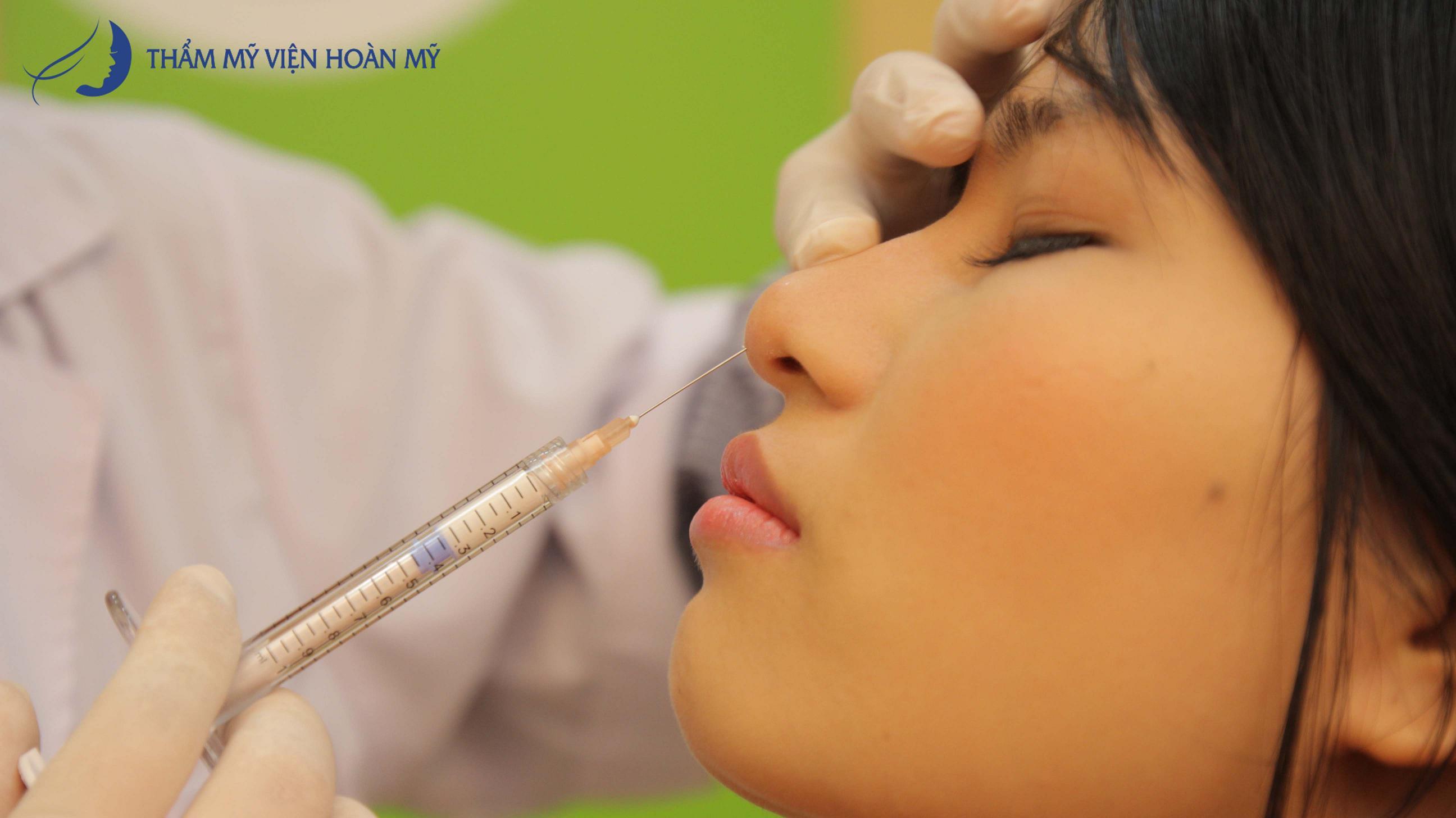Sửa mũi thu gọn cánh mũi có chi phí bao nhiêu? 5