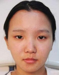 Tại sao lại bị mắt to mắt nhỏ? Cách khắc phục mắt to mắt nhỏ hiệu quả!