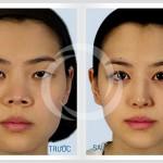 Phương pháp thu gọn cánh mũi dày