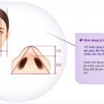 Phẫu thuật cắt cánh mũi trong thẩm mỹ mũi