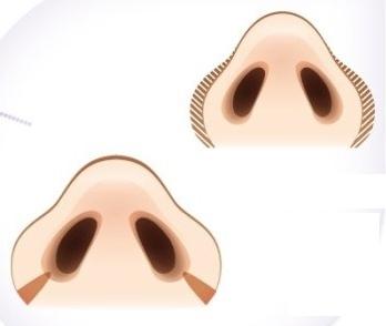 Cắt cánh mũi - không thể thiếu trong thẩm mỹ mũi 2