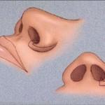 Đầy đủ nhất về phẫu thuật thu gọn cánh mũi đẹp