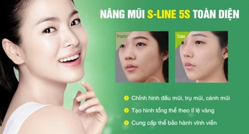 Tìm hiểu giá nâng mũi S line cho mũi đẹp hoàn hảo