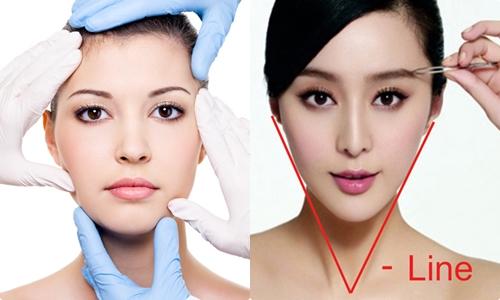 Phẫu thuật gọt cằm bằng công nghệ nội soi hàng đầu Hàn Quốc