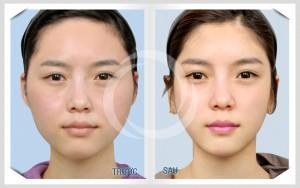 Gọt mặt thẩm mỹ công nghệ Hàn Quốc mang lại kết quả hoàn hảo