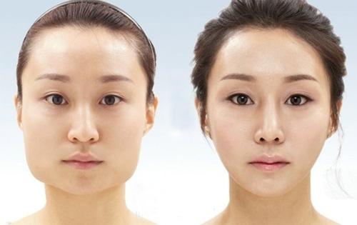 Gọt mặt trái xoan giúp khuôn mặt thon gọn hơn