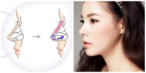 Nâng mũi s line an toàn tuyệt đối, phục hồi nhanh chóng